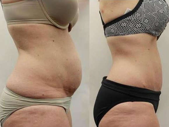 slimming_patches